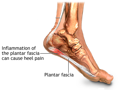 heel pain picture