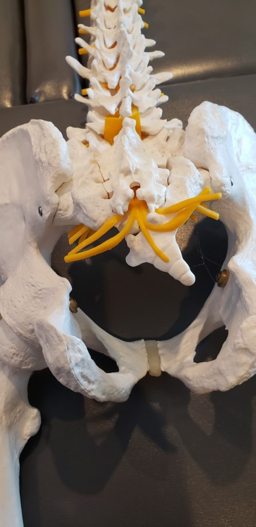 spinal model showing the tailbone or coccyx misaligned